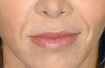 Is Restylane really effective to treat wrinkles?