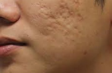 The Different Types of Acne and Acne Treatments