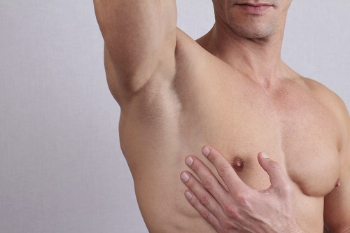 Save Yourself from Embarrassment via Laser Hair Removal for Men