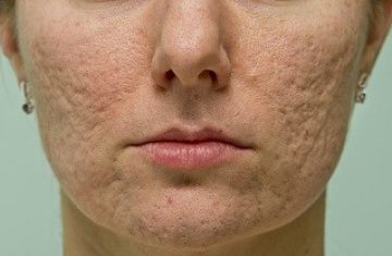Unwanted Acne Scars Get the Laser Treatment