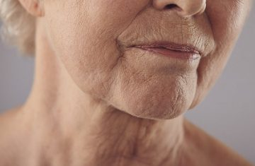 Non-Surgical Solutions to Sagging Jawlines