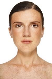 Eliminate Skin Sun Spots
