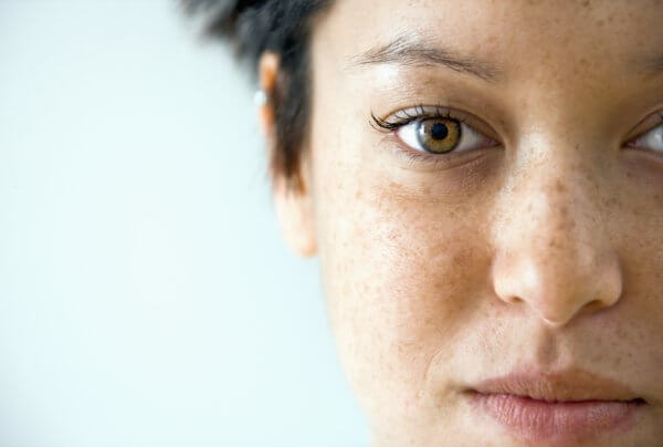 4 Common Types of Pigmentation and How to Treat Them Effectively