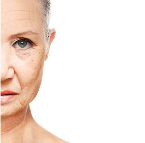 Wrinkle treatment singapore