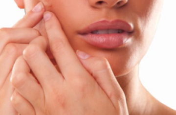 Pimple Problems Popping Up? 4 Tips in Dealing With Active Acne and Acne Scars