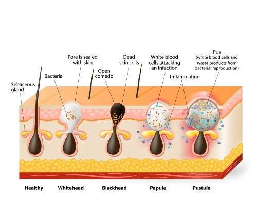 However When Se Mi With Dead Skin Cells They Start To Form A Clog In The Follicle This Combination Creates Problem As Clogged Pores