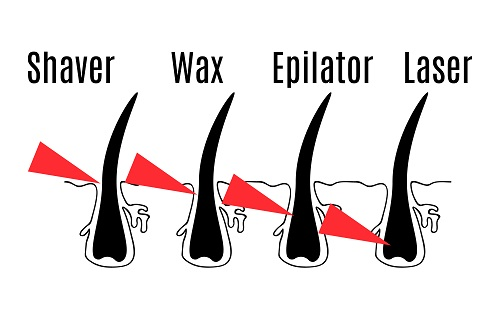 Hair Removal Options