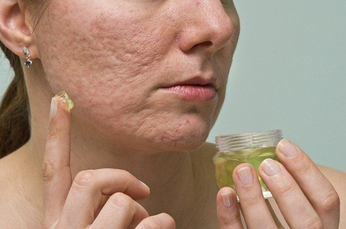 3 Reasons Why You Don't Have to Live With Acne Scars