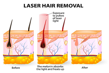 Understanding Hair Growth Cycles and Their Effects on Laser & IPL Hair Removal