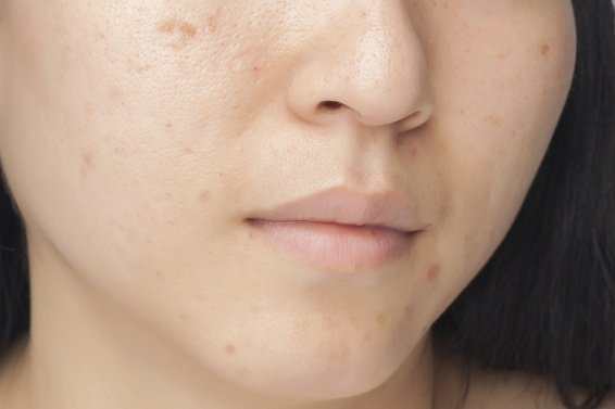 Does Stress Cause Acne? A Mind-Skin Connection Approach in Treating Acne