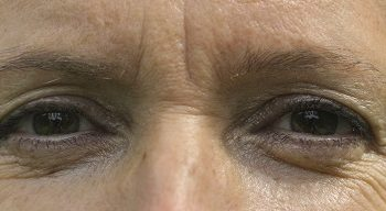 Non-Invasive Treatments to Lift the Brows