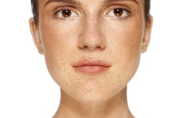 Understanding How Skin Lighteners Work: A Mini-Guide to Help You Fade Dark Spots