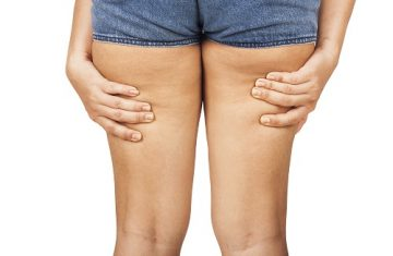 Keep Your Legs Looking (and Feeling) Good