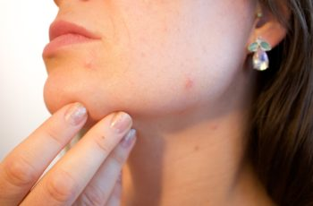 A Mini-Guide on Acne Treatments and Risks