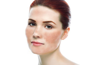 Adult Skin Concerns and Their Treatment