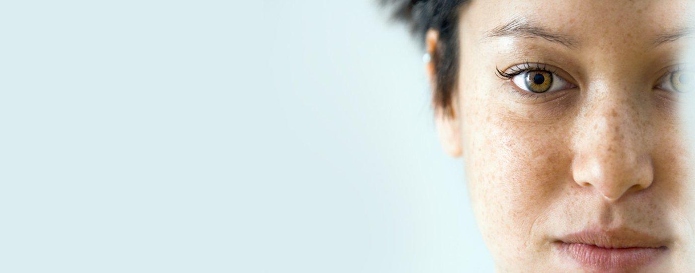 Pigmentation Removal Treatments