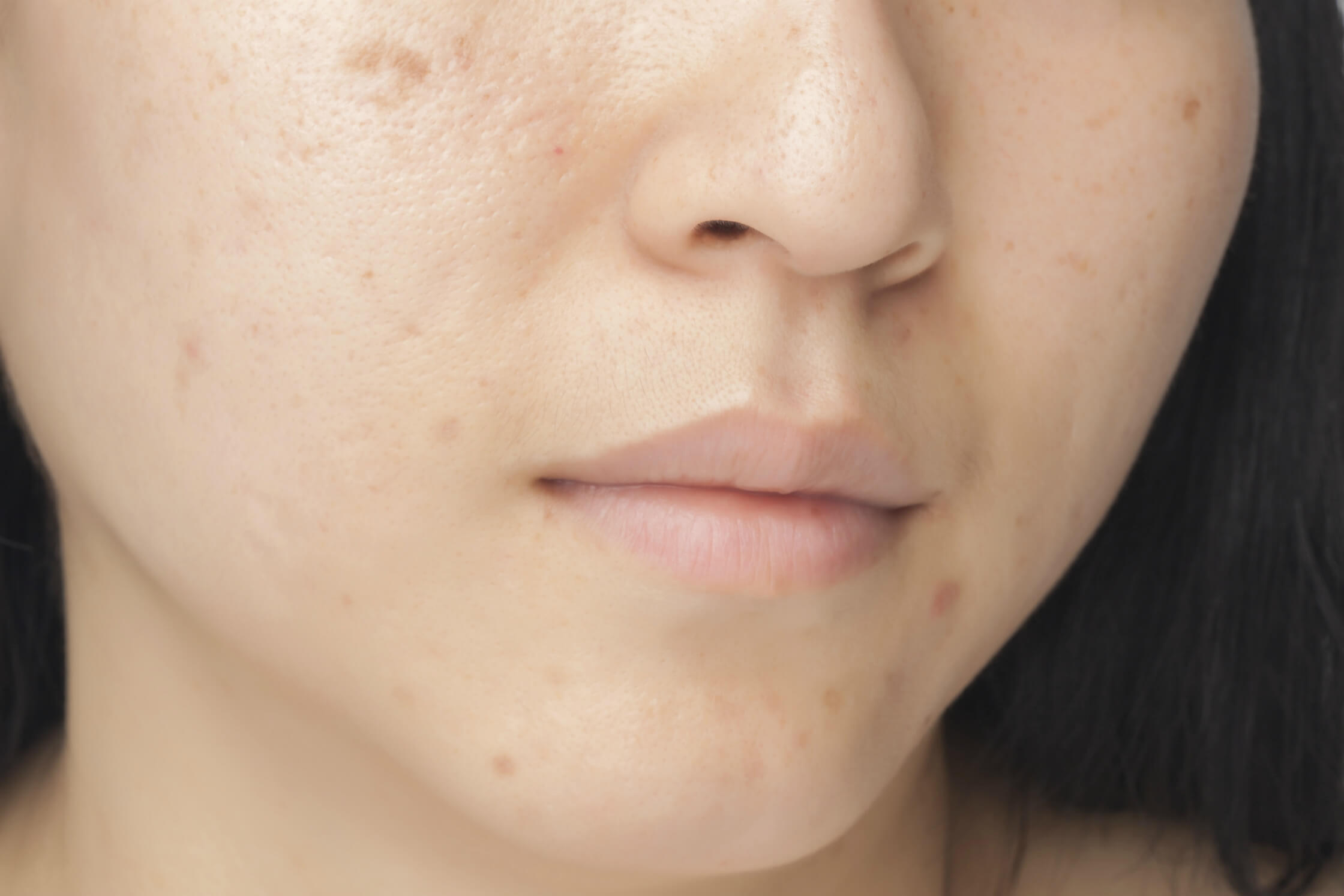 6 Things You Can Do to Reverse Sun Damage