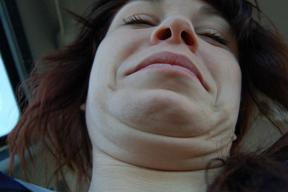 How to Remove Double Chin? Safe Double Chin Treatments in Singapore