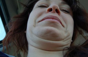 double-chin-treatments