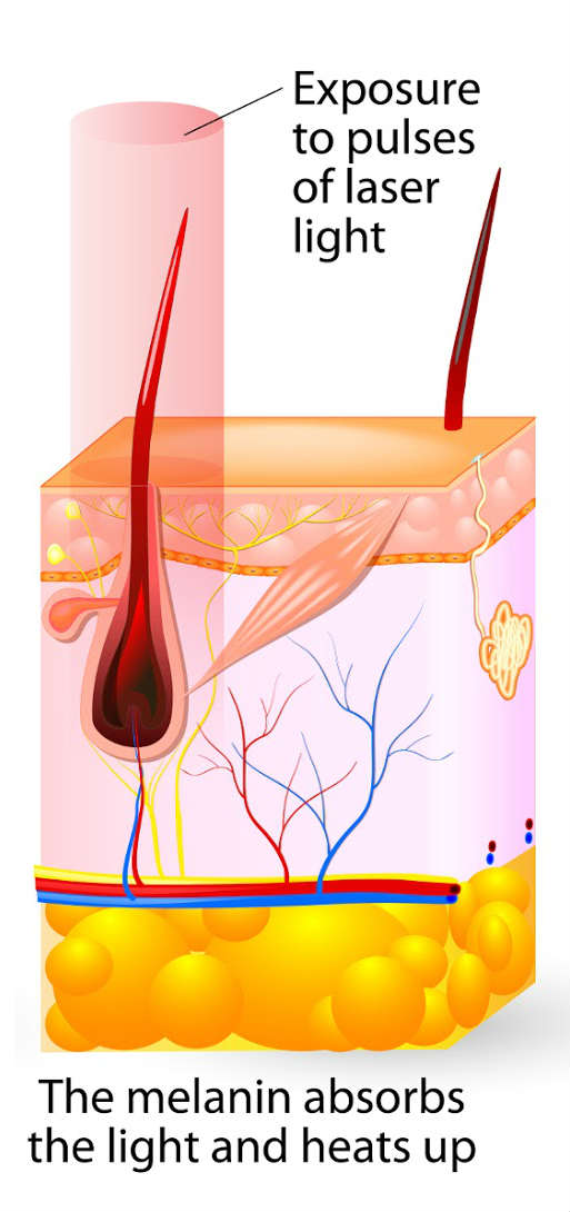 What Is the Difference Between Laser and IPL Hair Removal?