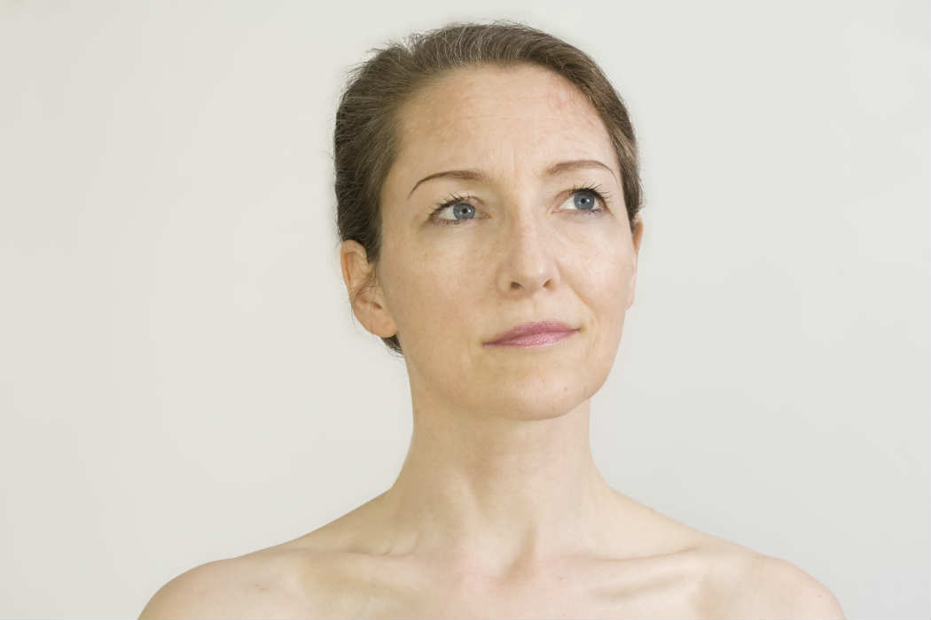 What Is Melasma and How Do You Treat It Effectively?