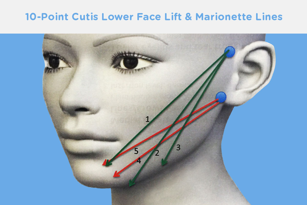 10-point-lower-lift-marionette