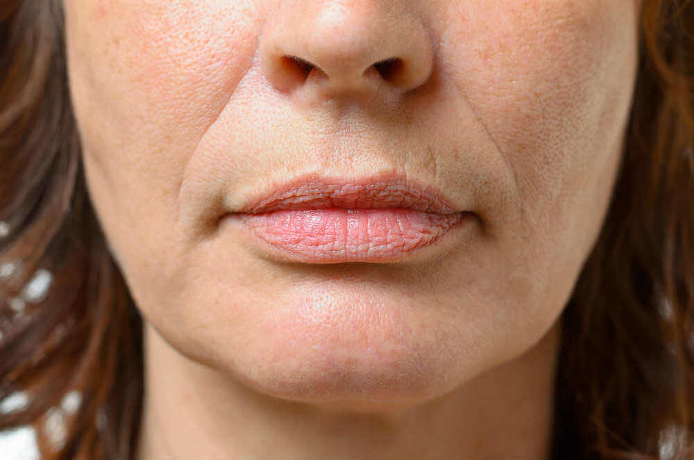 Removing-Lines-Around-Your-Mouth