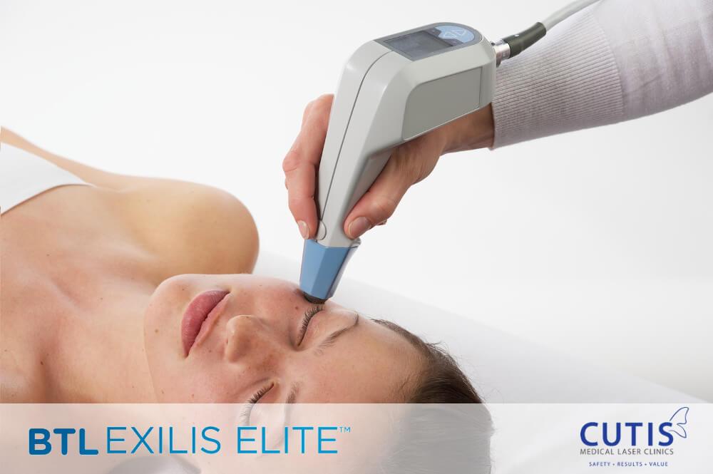 Exilis-face-logo