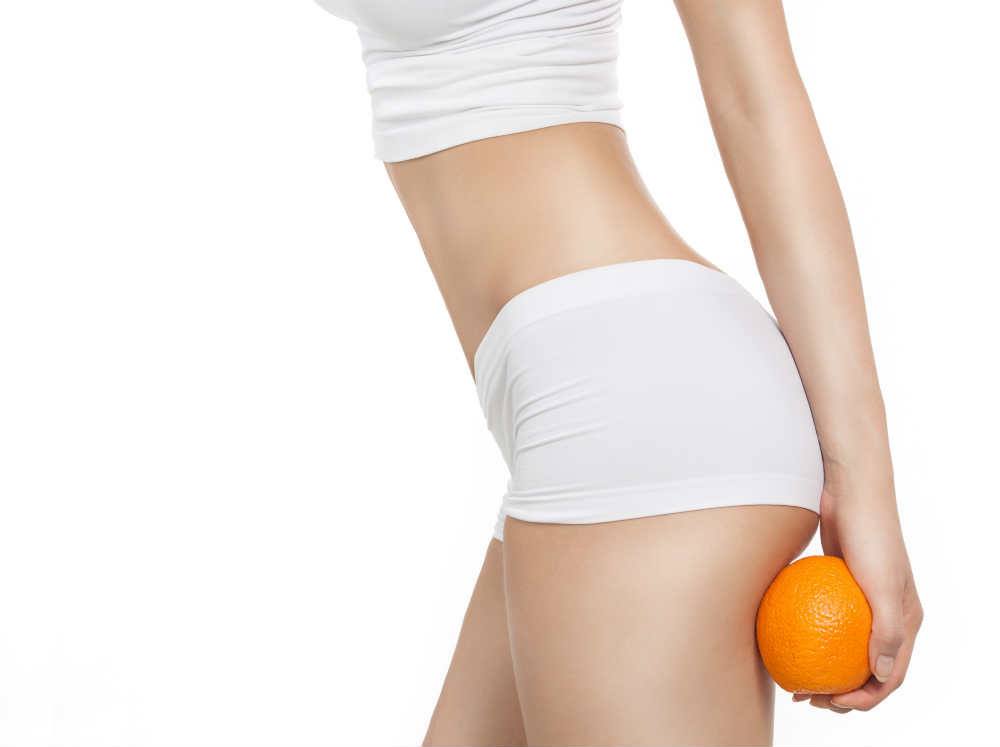 Treatments that Win Against Cellulite in the Buttocks