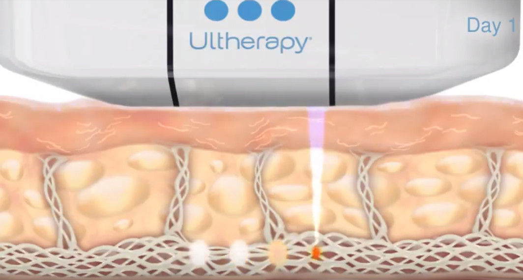 Ultherapy how it works