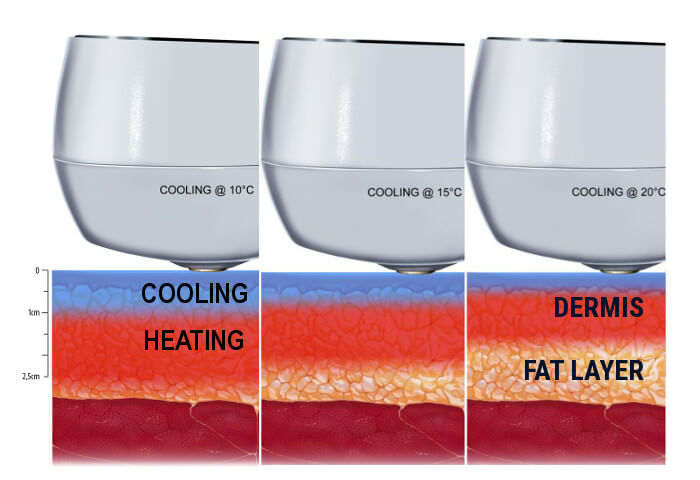 cutis-exilis-controlled-cooling