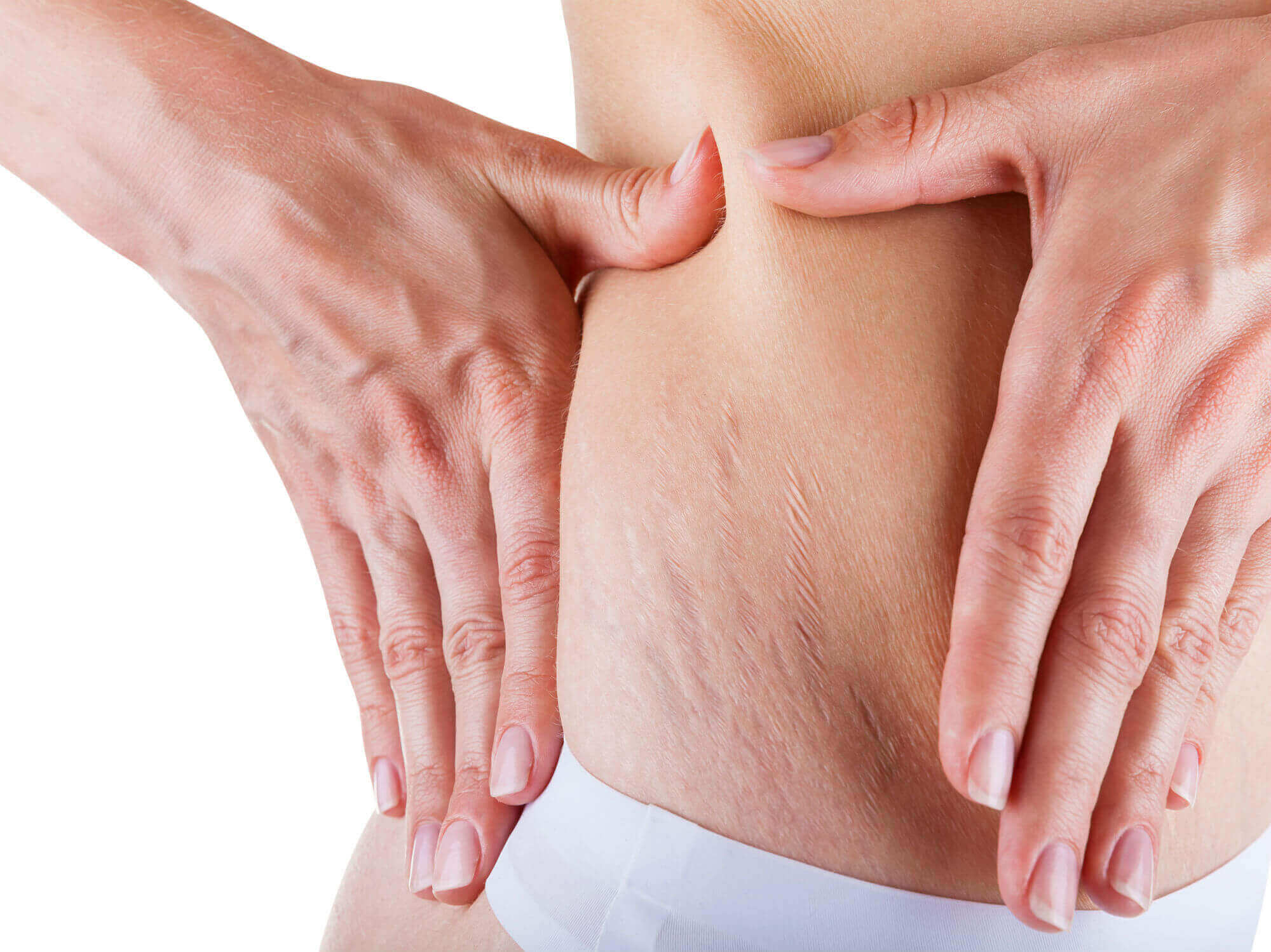 Can You Get Rid of Stretch Marks