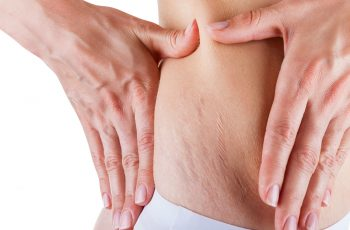 Can-You-Get-Rid-of-Stretch-Marks
