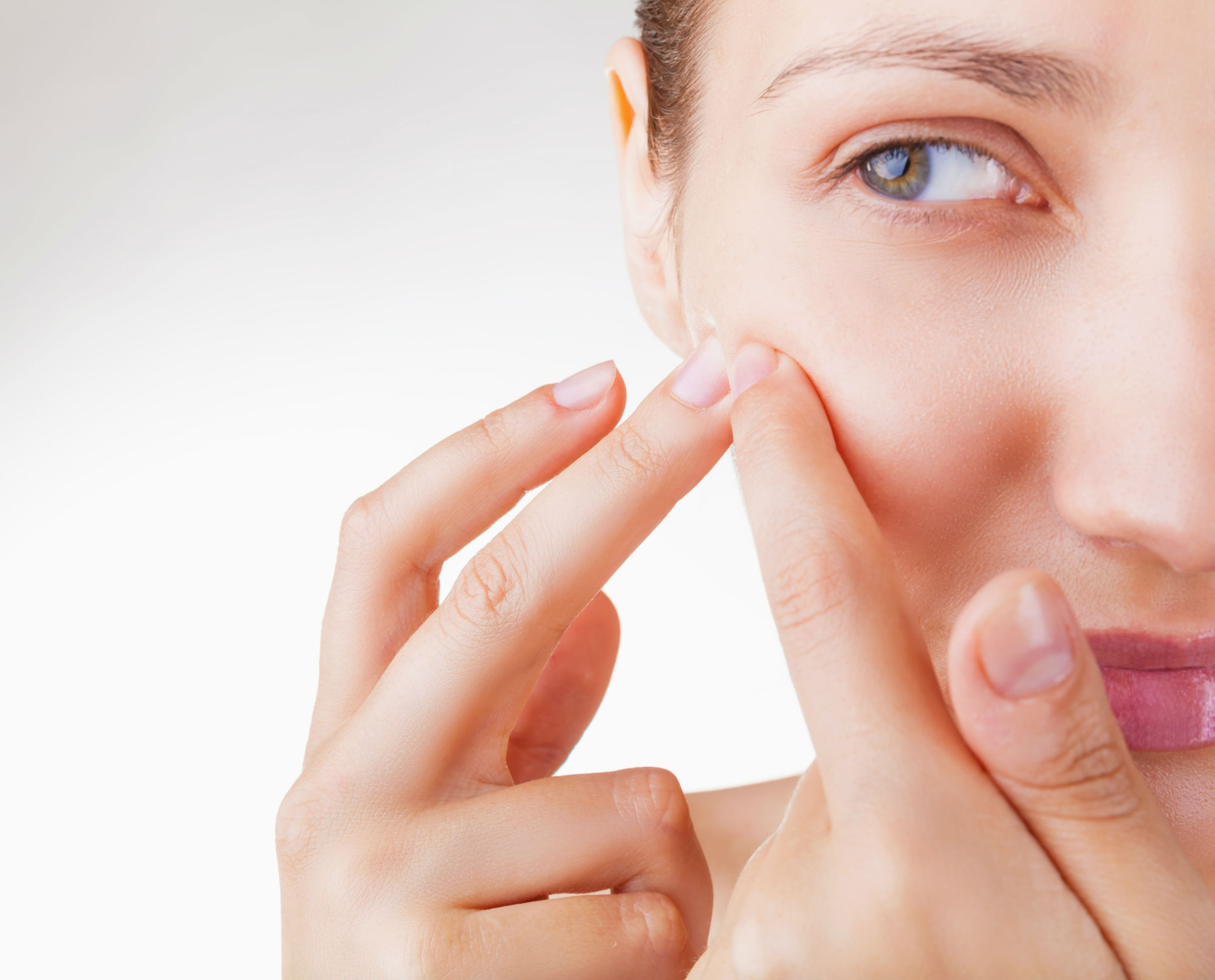 What-Causes-Acne-and-How-to-Cure-It