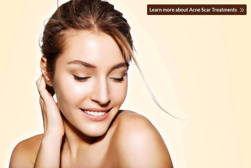 5 Effective Acne Scar Treatments