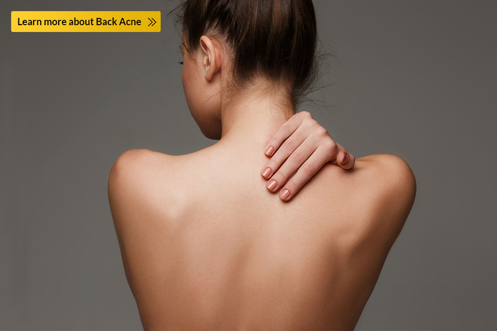 back acne