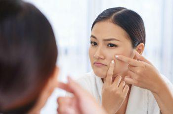 Acne-Scars-Worse