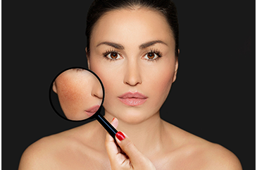 What Causes Melasma and What Can You Do About it?