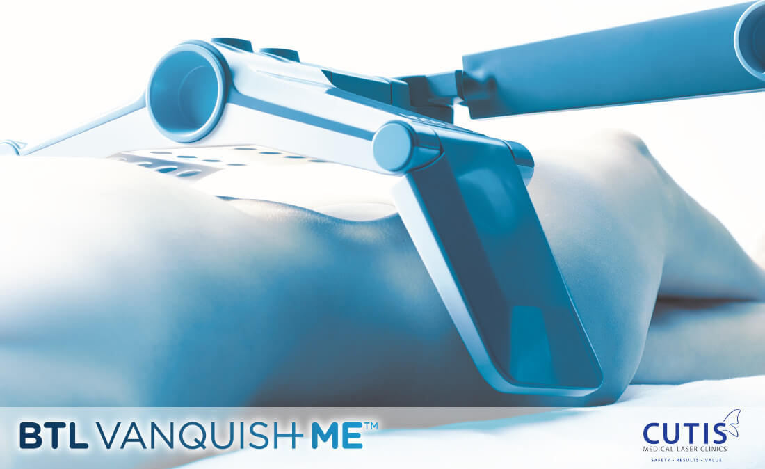 Fat Reduction via Vanquish ME's Fat Melting Technology: Is it Effective?