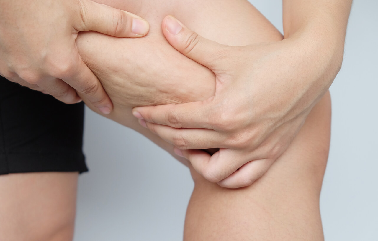 Why Do I Have Cellulite? And How Can It Be Effectively Treated?
