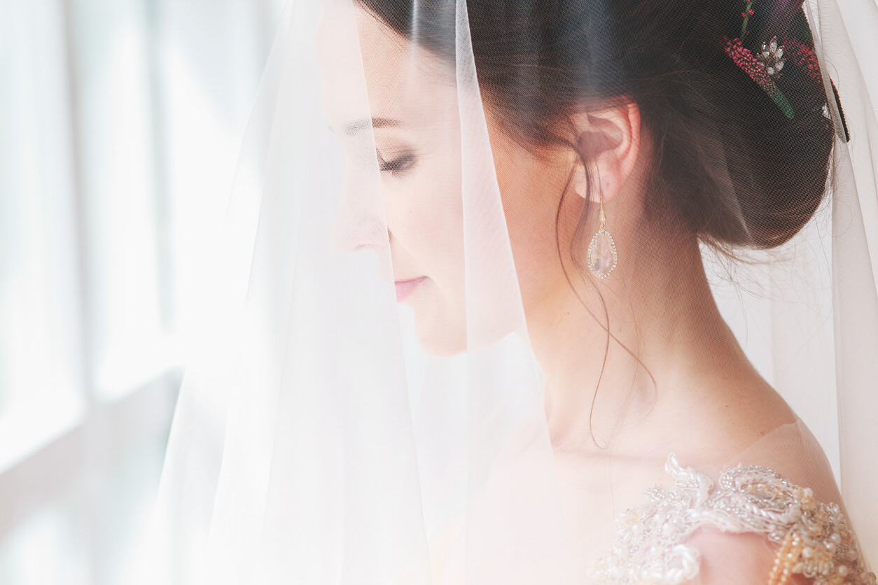 Look Your Best in Your Wedding: Pre-Bridal Aesthetic Treatments and When to Schedule Them