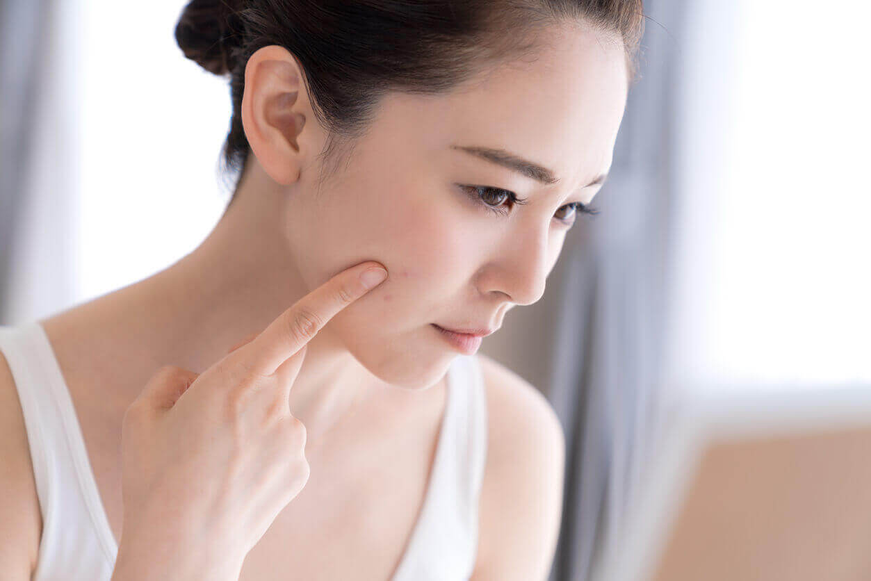 Got Acne? Here are Your Treatment Options