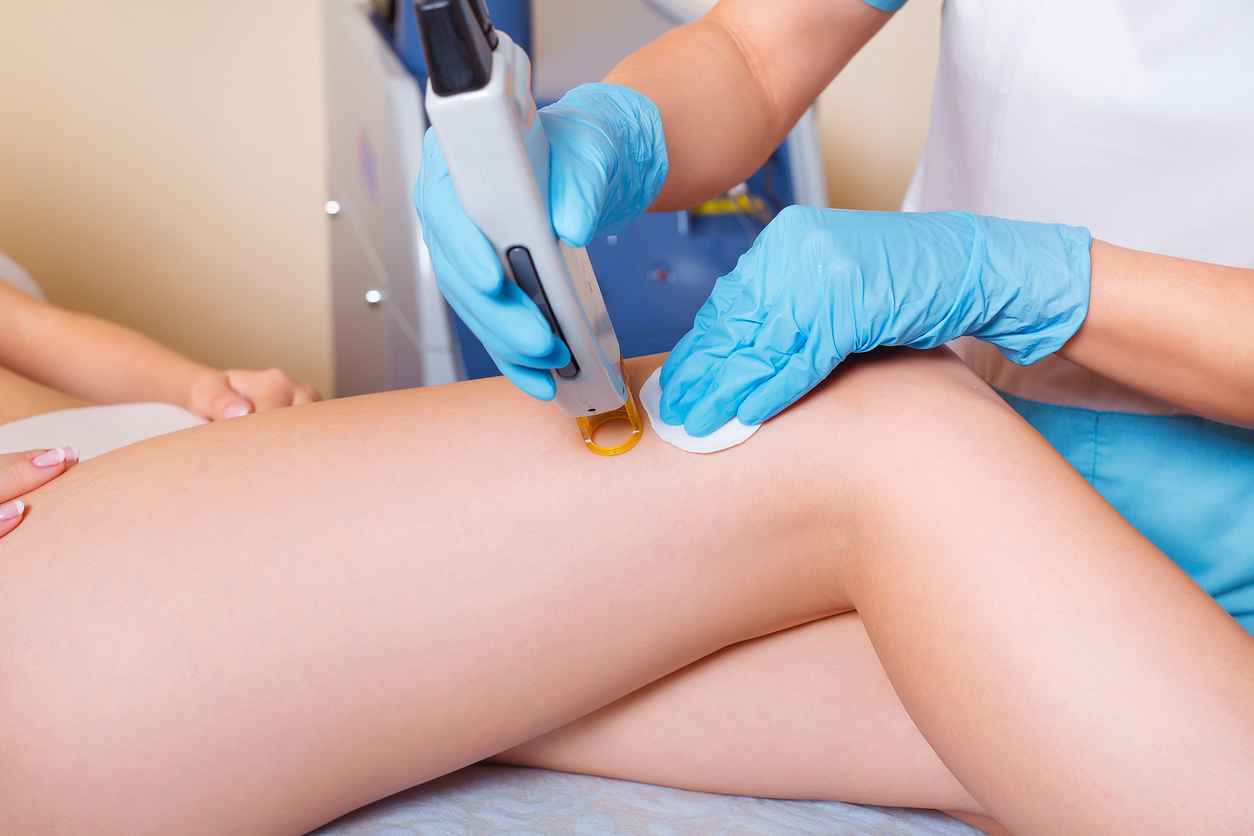 Laser Hair Removal: Does it Hurt?
