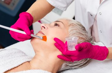 Discover the Effectiveness of Chemical Peels to Reduce Acne Scars