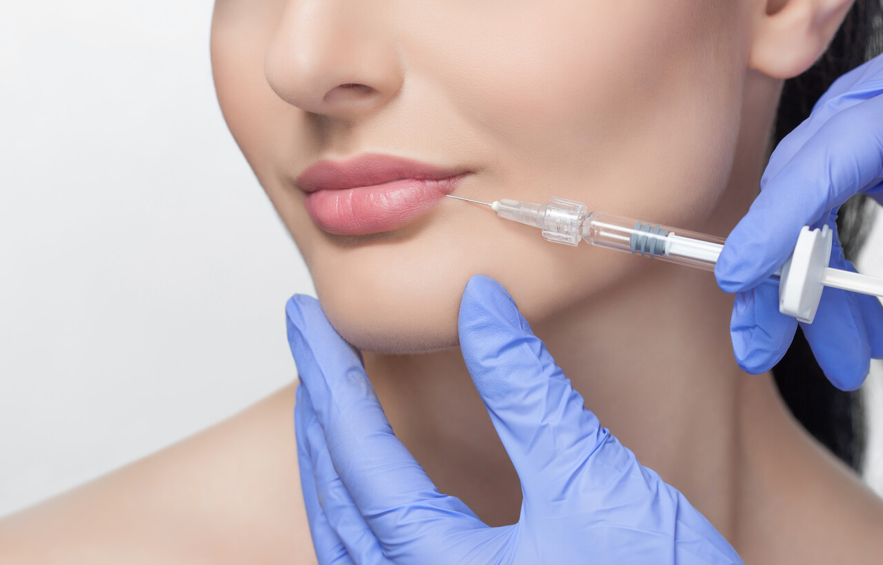 5 Things to Look Out For When Doing Fillers