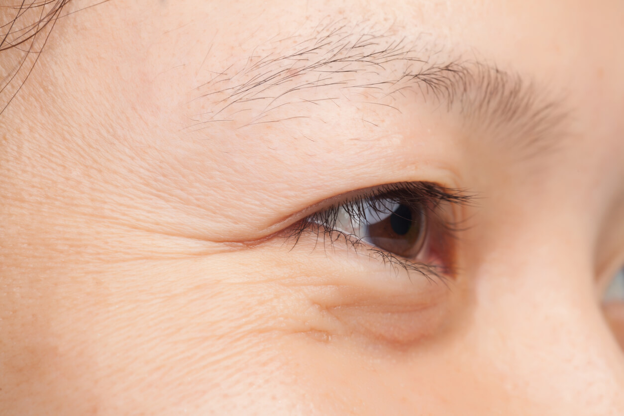 Got Lines and Wrinkles Around Your Eyes? Here's the Truth About Your Treatment Options
