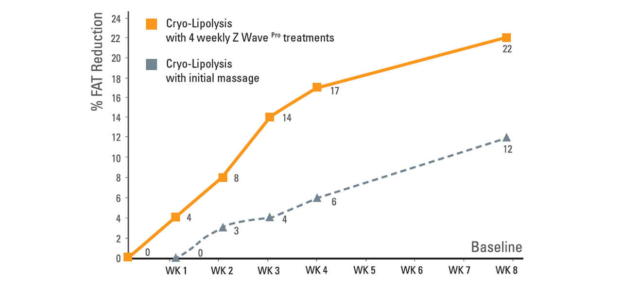 Chart-Z-lipo-and-Z-wave