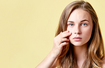 How to Fade Post-Acne Marks