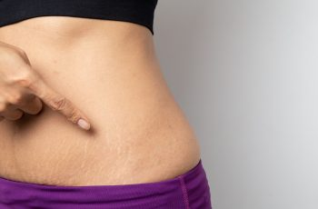 Stretch Marks Go Away After Pregnancy