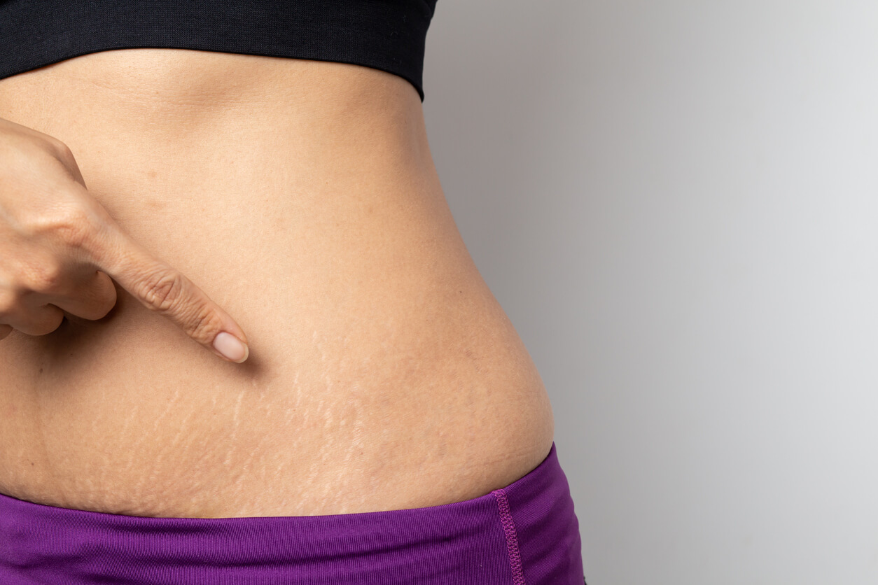 Will My Stretch Marks Go Away After Pregnancy?